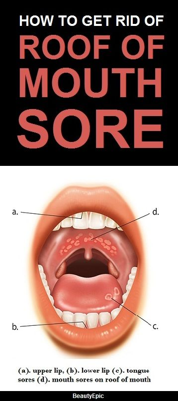 5 Simple Ways to Get Rid of Roof of Mouth Sore at Home | health