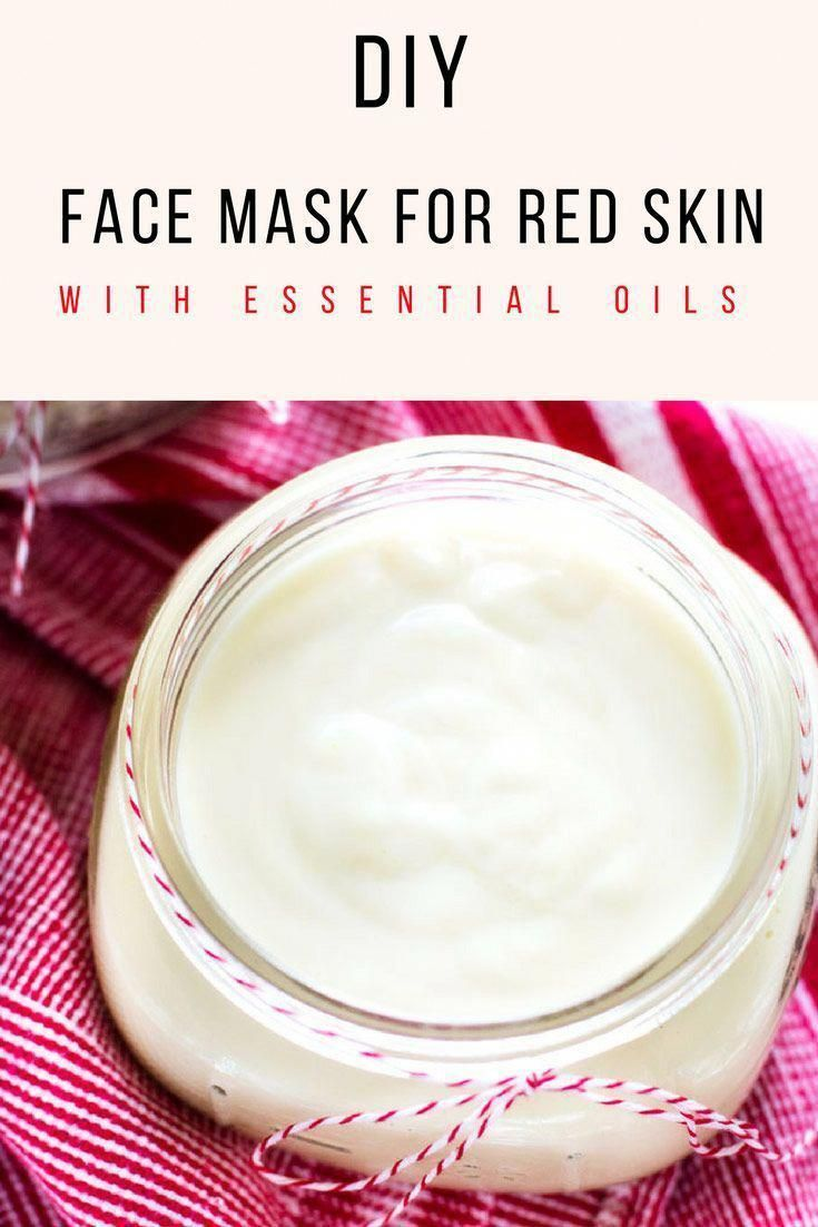 Photo of This DIY Face Mask for Red Skin is the perfect way to soothe…