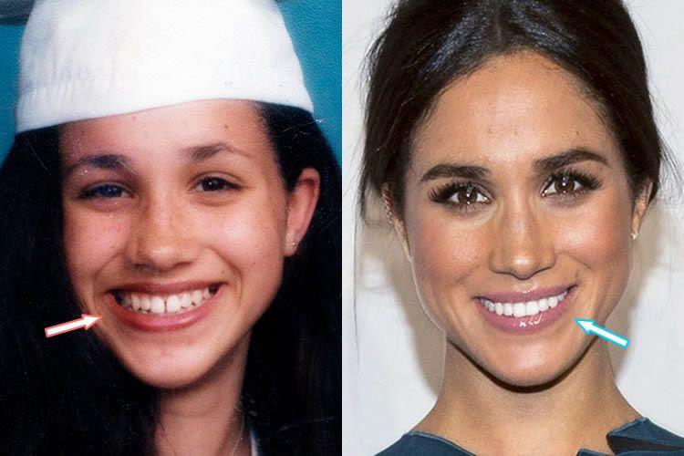 Meghan Before And After New Teeth Veneers Beautiful Teeth Meghan Markle Nose Job Veneers Teeth