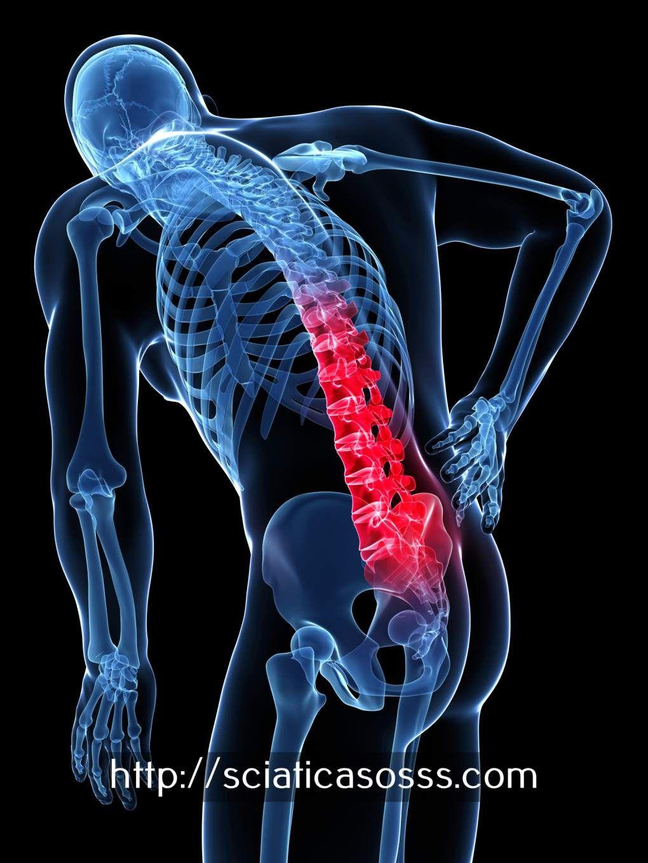 Nerf Sciatique Anatomie   Ischias, Bandscheibenvorfall symptome und ...