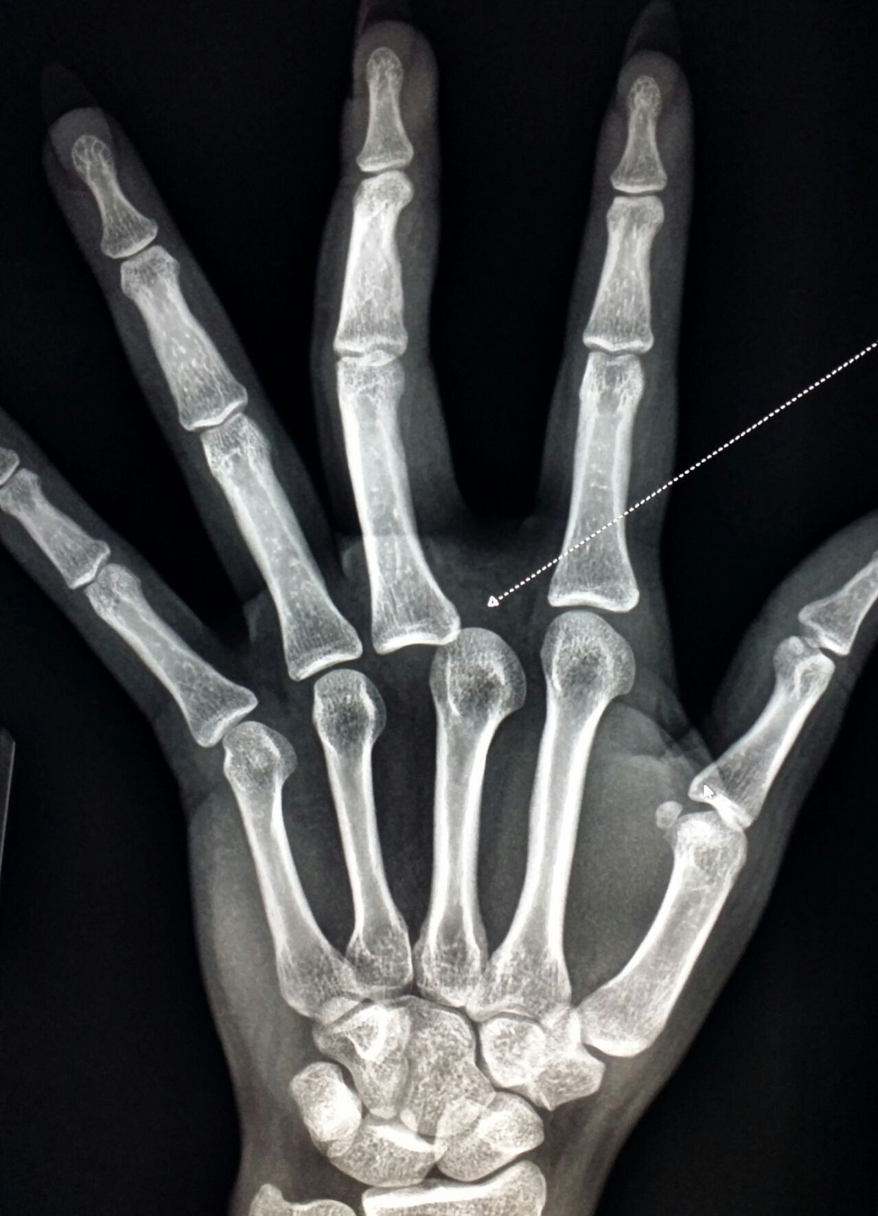 Xray of #hand shows a #dislocated# finger. #radiology #radiologist ...