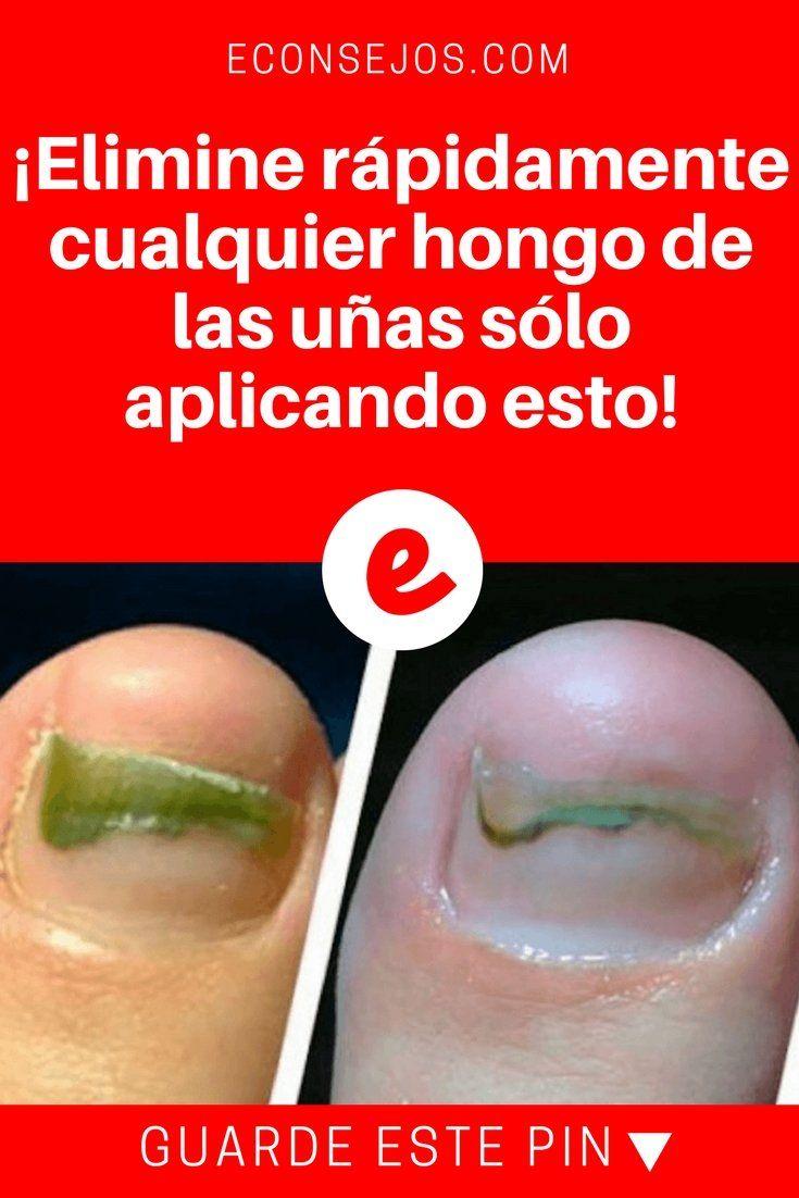 Elimine rapidamente cualquier hongo de las uñas sólo aplicando esto ...
