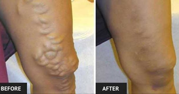 How To Get Rid Of Varicose Veins Without Any Surgery  #lifehacks  #fitness