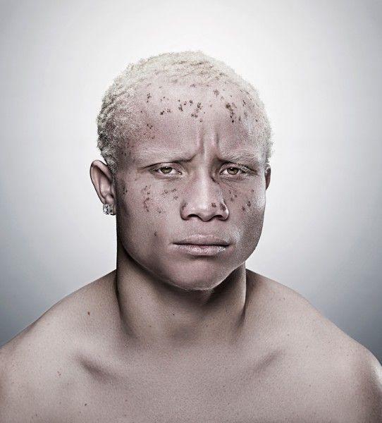 Wanted / visage / homme / albinisme / piebaldisme&vitiligo ...