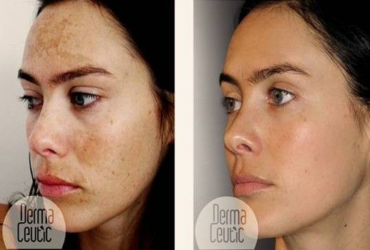 Image result for Melasma And New Ways To Get Rid Of It
