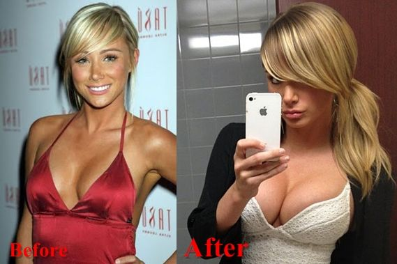 Sara jean underwood gets boob job