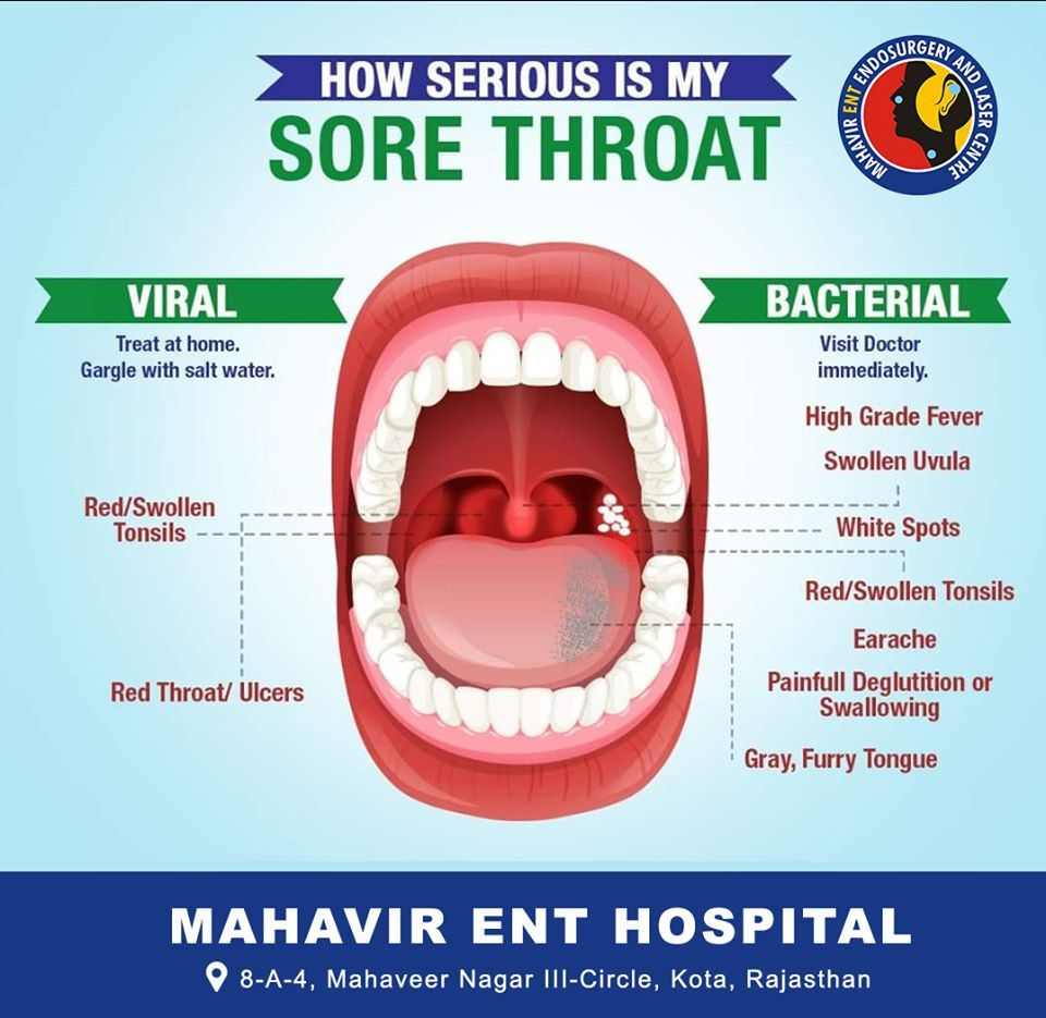 Sore Throat in 2020 Throat ulcers, Throat problems
