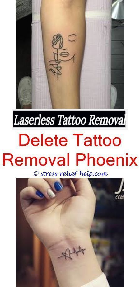 getting a tattoo removed is it possible to remove ...