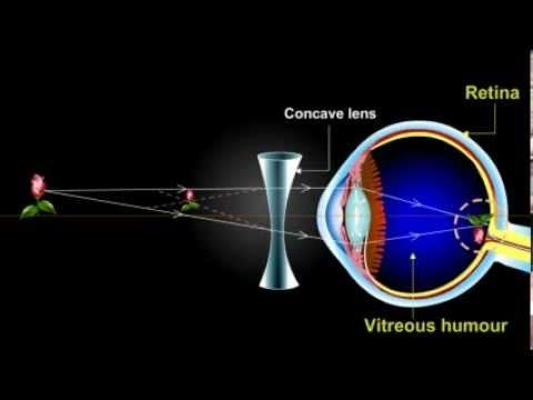 what is myopia??? (Short Sightedness) - YouTube | Eye Anatomy ...