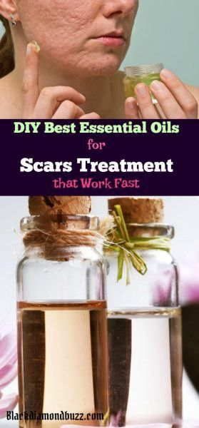 Diy Best Essential Oils For Scars Treatment That Work Fast Scar
