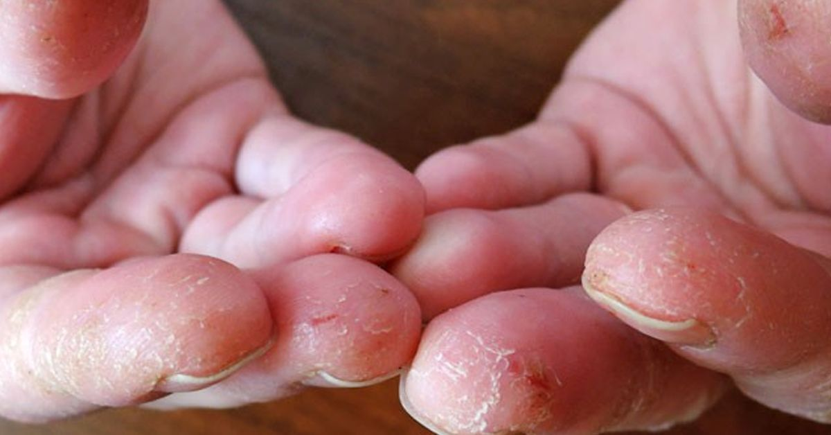 Kuno odos grybelio gydymas