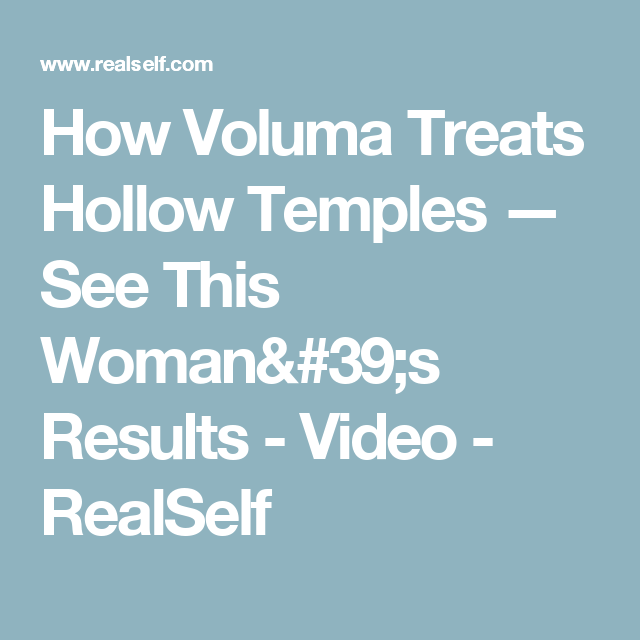 How Voluma Treats Hollow Temples — See This Woman's Results - Video