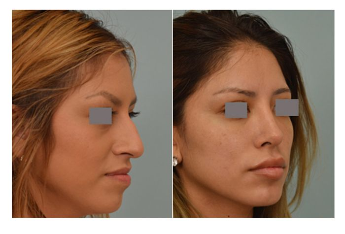 Closed Rhinoplasty By Dr Vladimir Grigoryants Rhinoplasty Before And After Lipstick For Fair Skin Rhinoplasty Nose Jobs