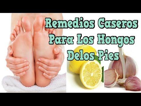 crema natural para los hongos delos pies