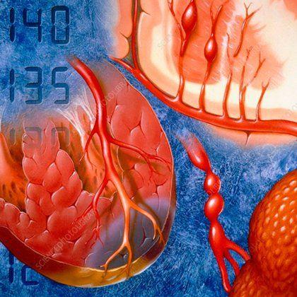 Гипертония и позвоночник упражнения