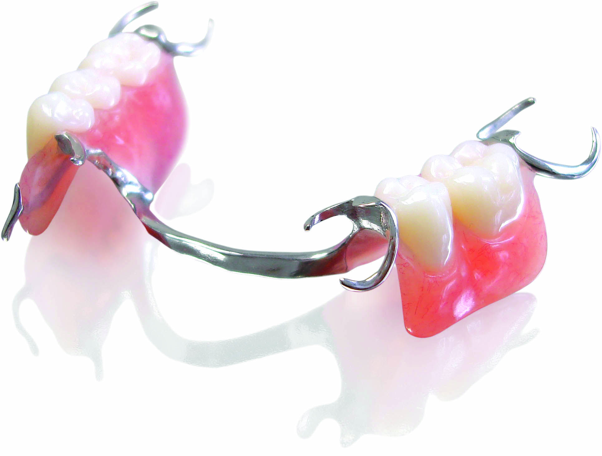 proteza dentara pe capse