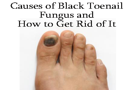 Causes Of Black Toenail Fungus And How To Get Rid Of It Toe Nail Fungus Treatment Black Toenail Fungus Toe Fungus Remedies Toenail Fungus