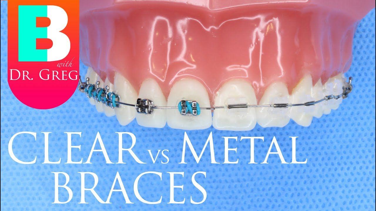 Clear Braces vs Metal Braces Metal braces
