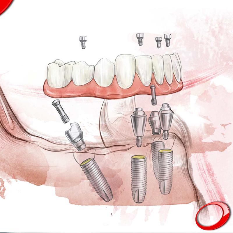 Para os casos em que as perdas de massa óssea estão muito avançadas, o conceito All-on-4 é a solução mais eficaz. Com apenas 4 implantes consegue recuperar o seu Sorriso e disfrutar de tudo o que mais gosta! www.pnid.pt