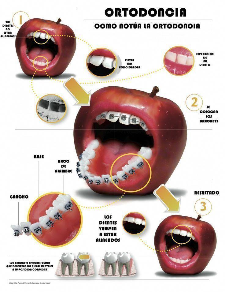 Irritating Dental Hygienist Oral Hygiene