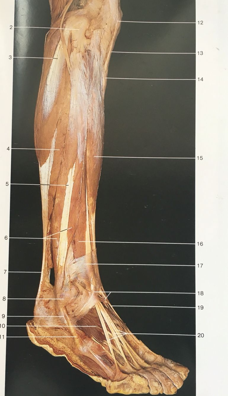 Lateral aspect muscles of right leg and foot: 15:tibialis anterior ...