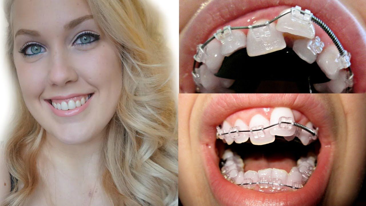 Braces Transformation Before And After Braces Time Lapse Ashley