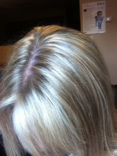 Platinum Highlights Much Easier Way To Fight The Grey