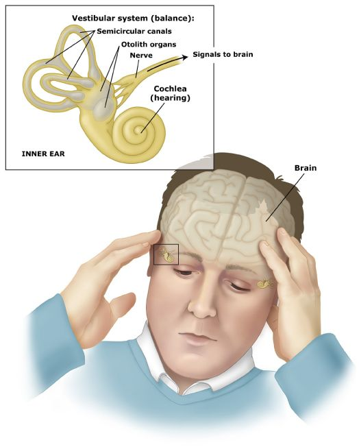 Natural Treatment For Vestibular Neuritis