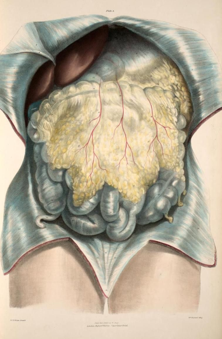 Anterior Abdominal Wall Divided And Reflected To Show The Omentum