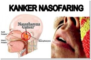 Image result for Kanker Nasofaring