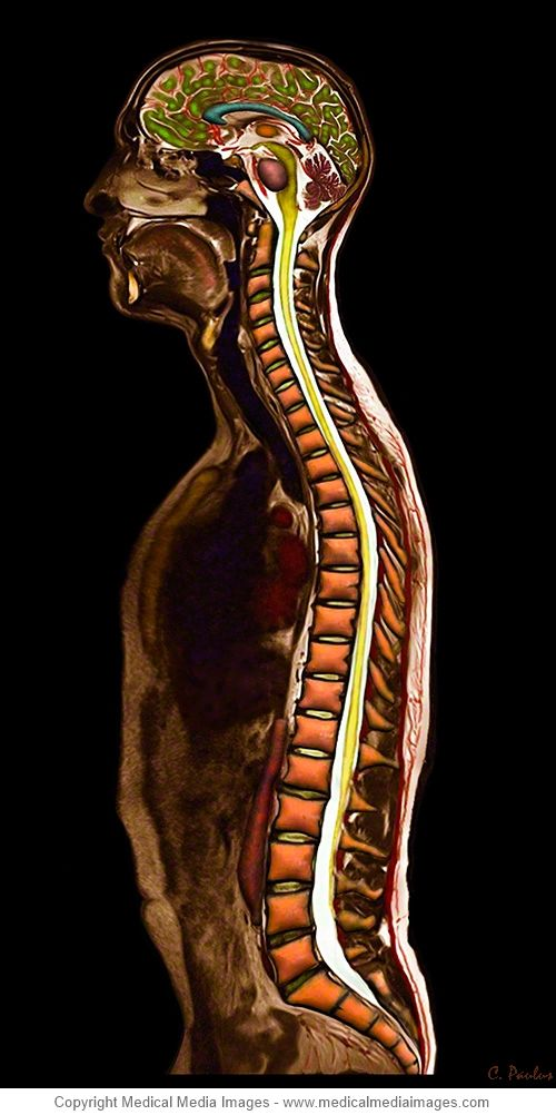 Pin von Medical Media Images auf Spine Anatomy shown on Color X-Ray ...