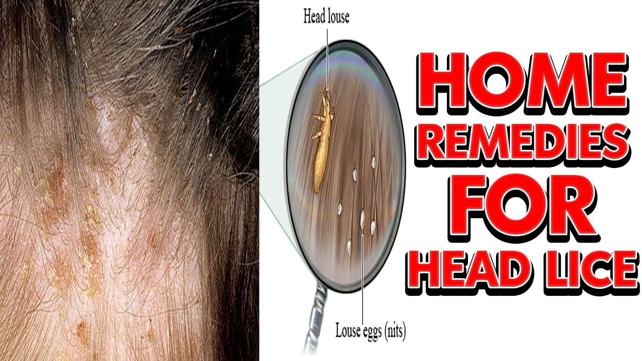 9634abcbcf14c33bc4cf9b3563a550ee - How To Get Rid Of Head Lice With Baby Oil