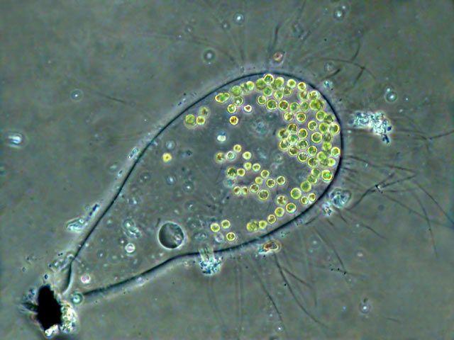 Leben im Teich: die Rettich-Alge (Apiocystis brauniana) Tetrasporaceae, Chlorophyta