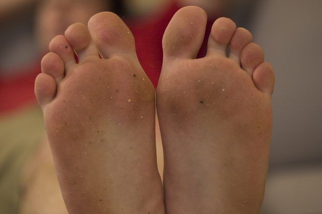 dry skin on bottom of feet