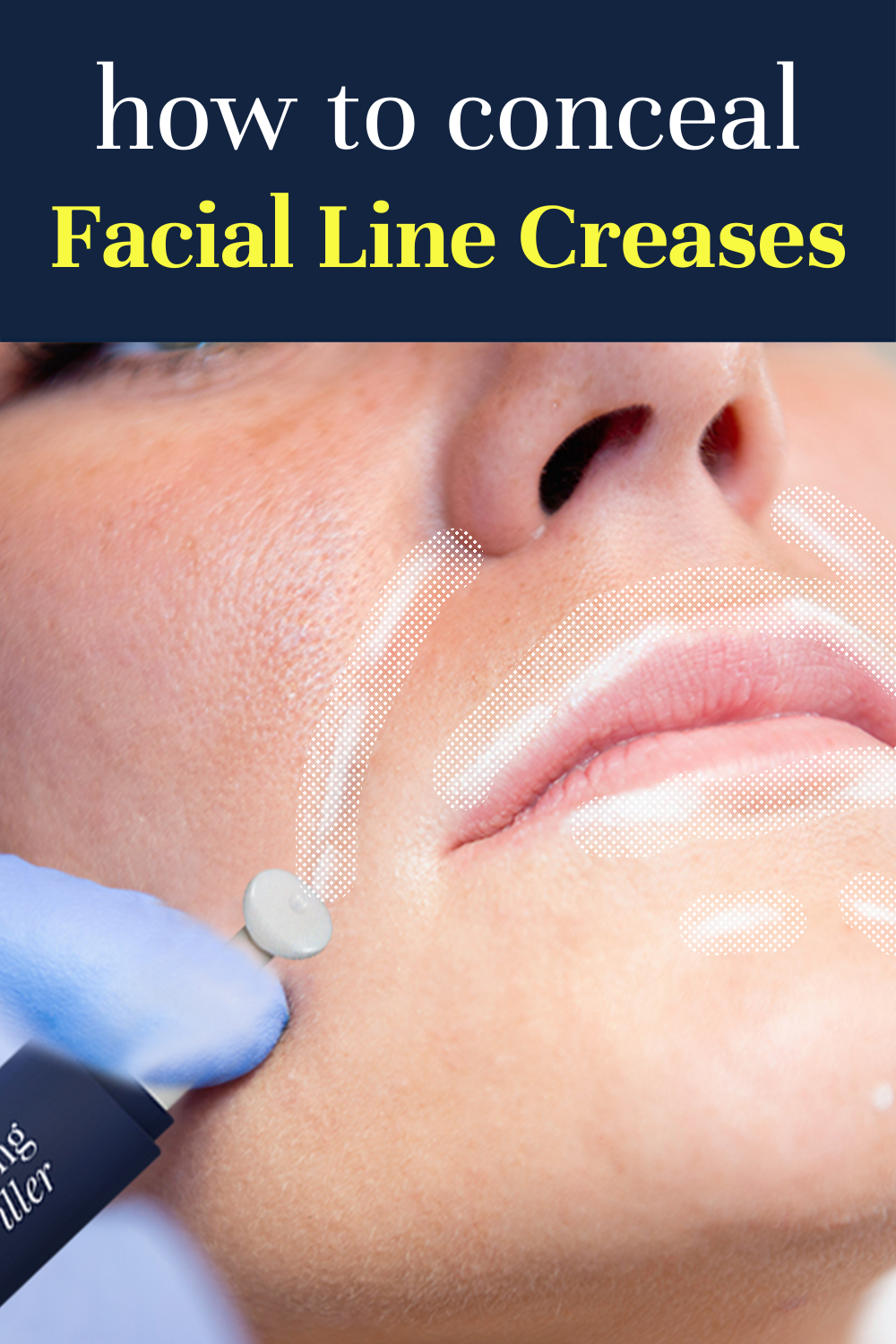 Fill out facial line creases in less than 60 secon