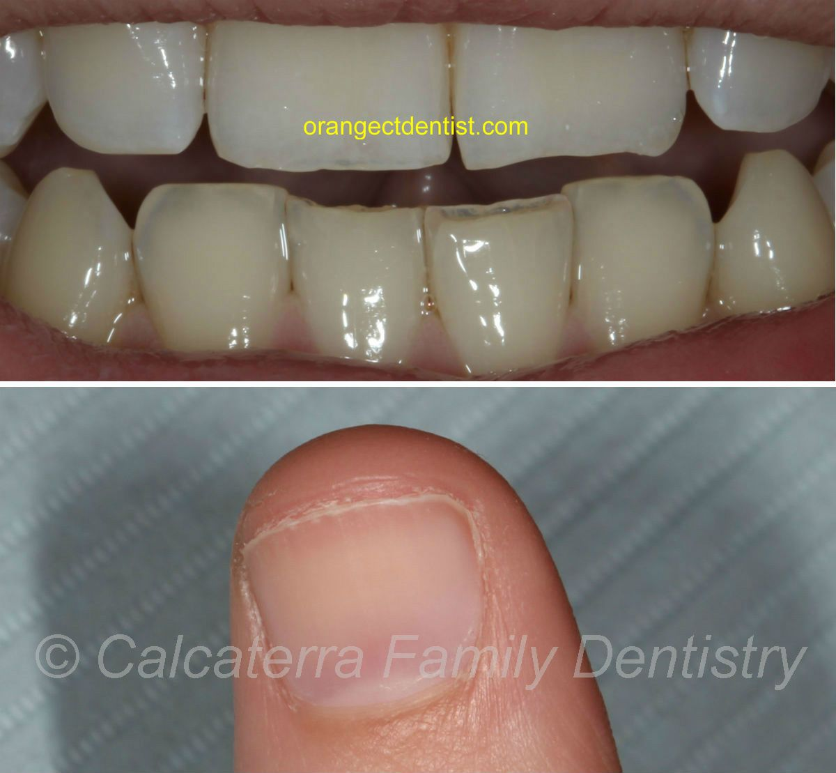 Best Mamelons on adult incisor teeth I have ever seen. | Dental ...