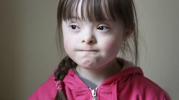 Foto de niña con síndrome de Down enojada