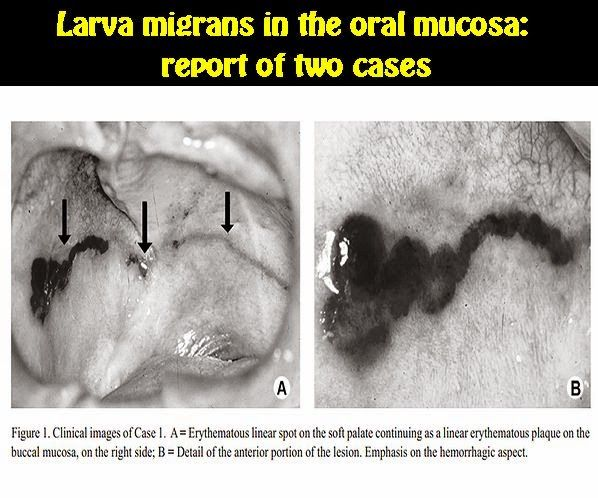 Larva migrans in the oral mucosa: report of two cases | OVI Dental ...