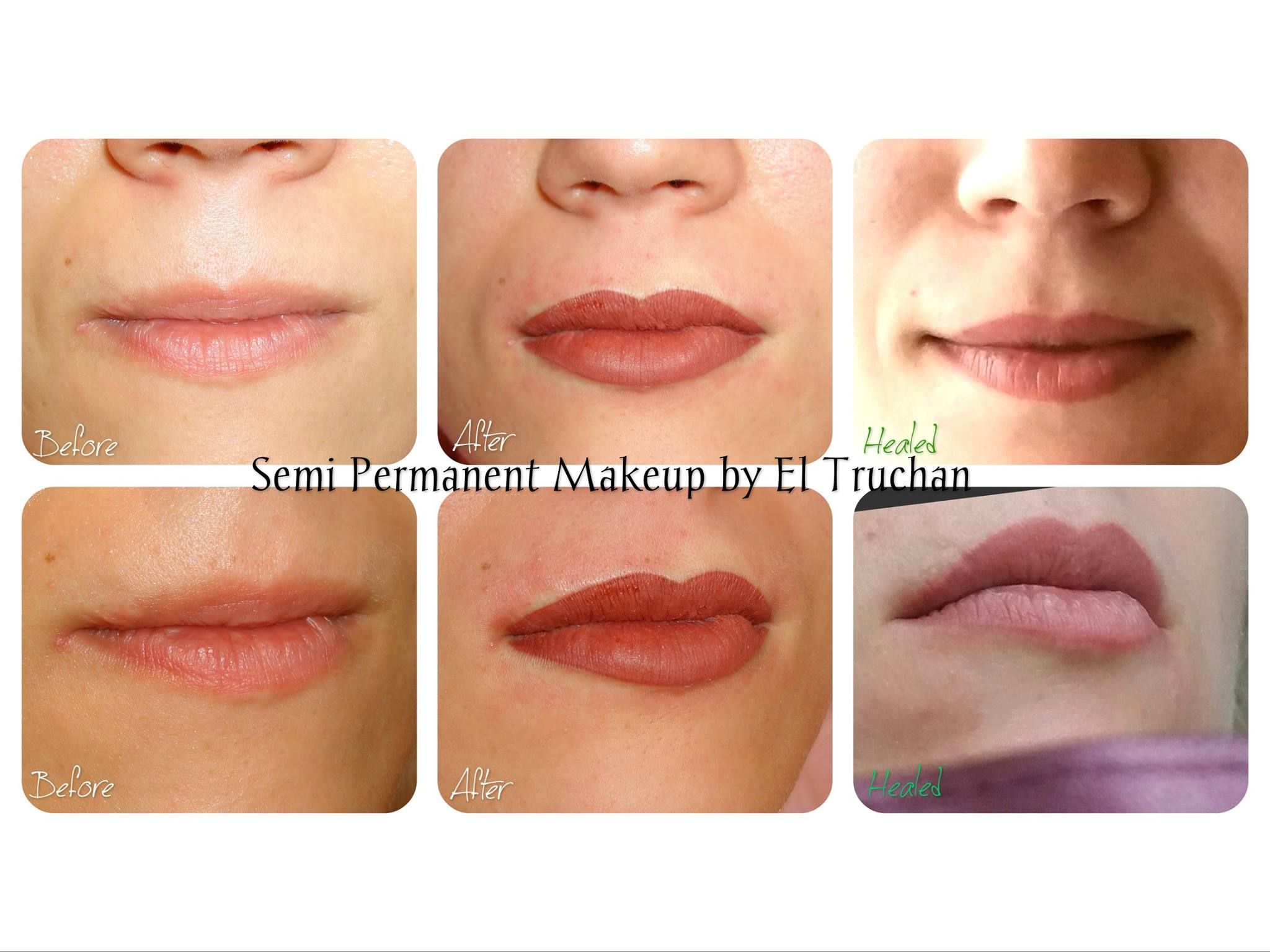 Lips Scar Tissue and Semi Permanent Makeup Healed Results | Pretty