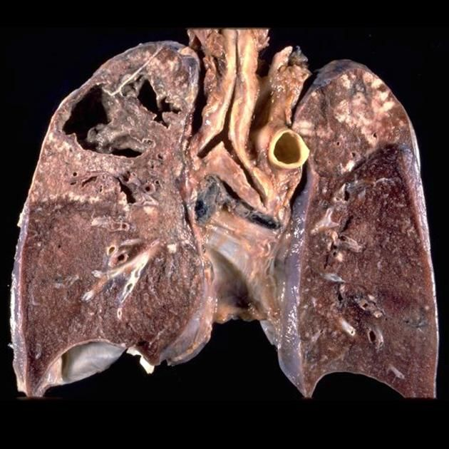 Cavitating pulmonary TB  Extensive necrosis with cavitation, usually occurring in the upper lung or apex,  is a characteristic feature of tuberculosis. This is probably related to persistence of  M. tuberculosis from a prior primary infection. Cavities form when necrosis involves the wall of an airway and the semi-liquid necrotic material is discharged into the bronchial tree.  http://radiopaedia.org/articles/pulmonary-manifestations-of-tuberculosis