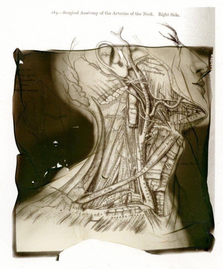 Emulsion lift from a Polaroid photo by Martin Cartwright