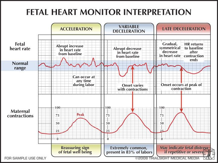 Fetal heart monitor strip