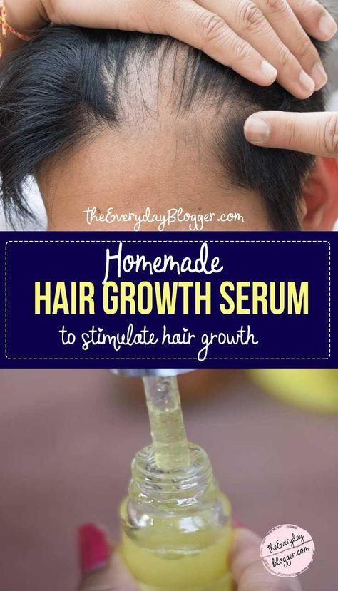 This #HairGrowthSerum DIY can stimulate the hair follicles and increase circulation to the scalp, which contributes to hair re-growth and may slow hair loss.