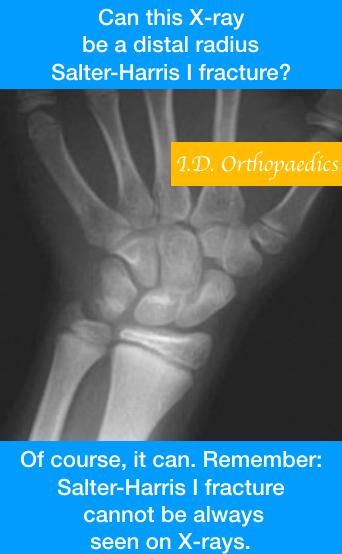 metaphyseal vs physeal fracture