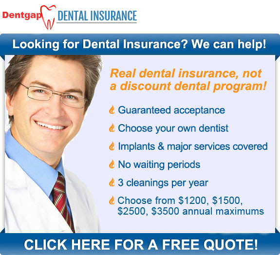 *Tips to Purchase Dental Insurance No Waiting Period plan