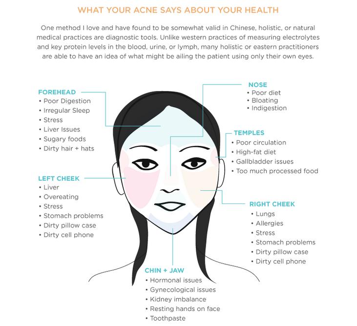 How To Get Rid Of Hormonal Acne Hormonal Acne Hormonal Acne