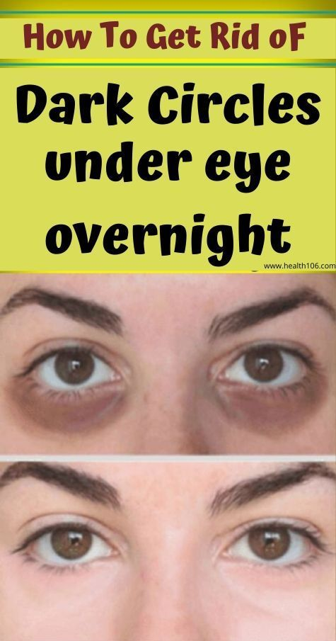 How to get rid of dark circles under eyes overnight.. in ...
