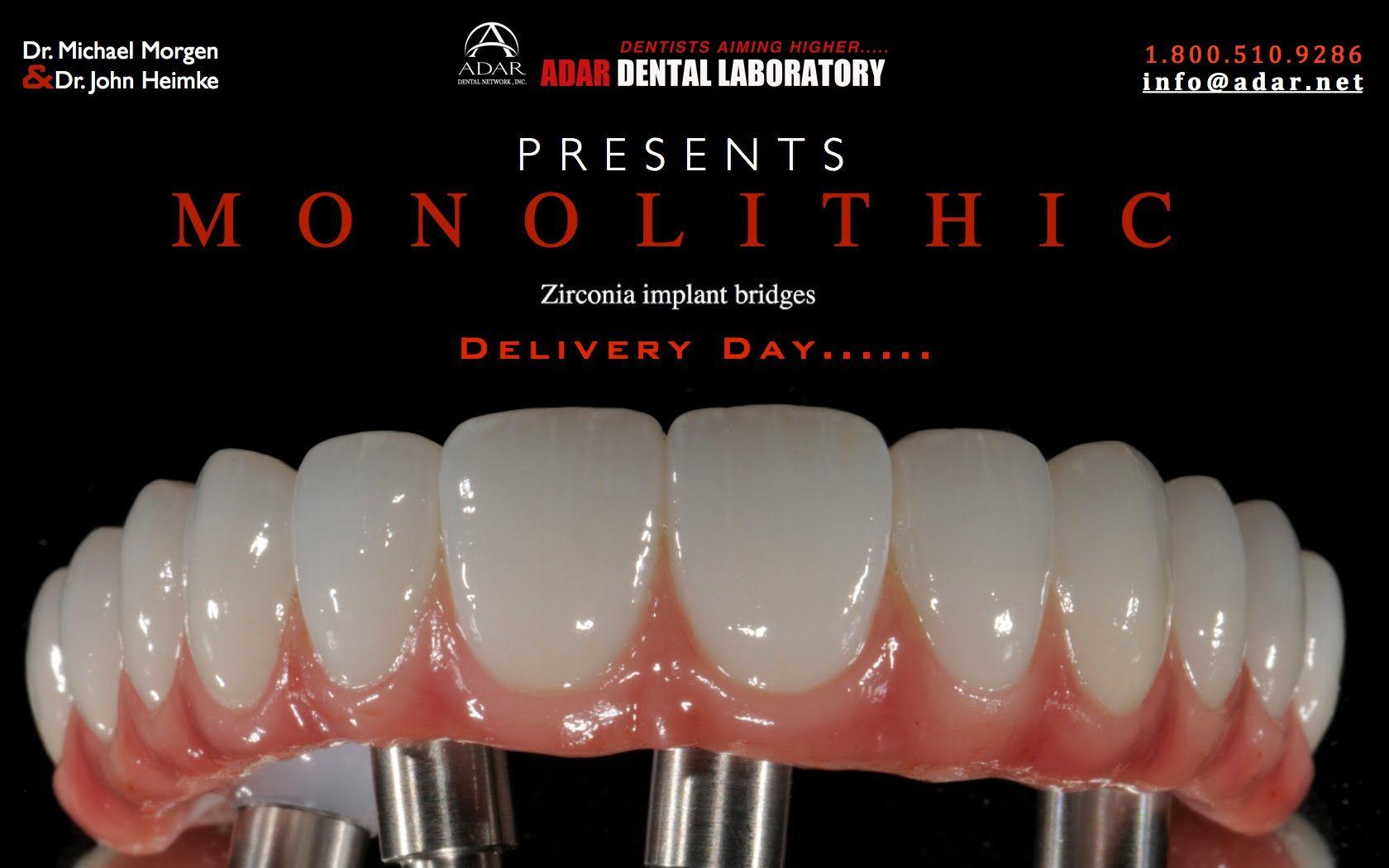 All On 4 Zirconia Hybrid Implant Bridge Delivery Day Info Adar Net Mini Dental Implants Dental Implants Cost Dental Bridge