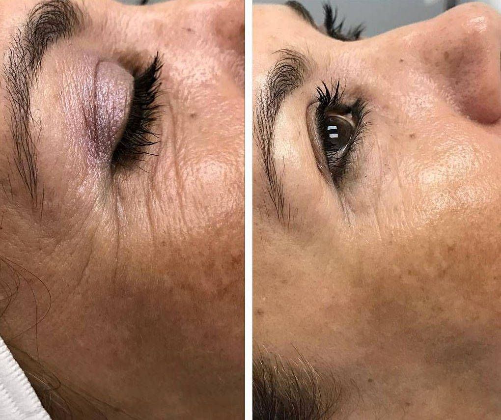Thermage Before And After Eyes (3) | Thermage Facelift