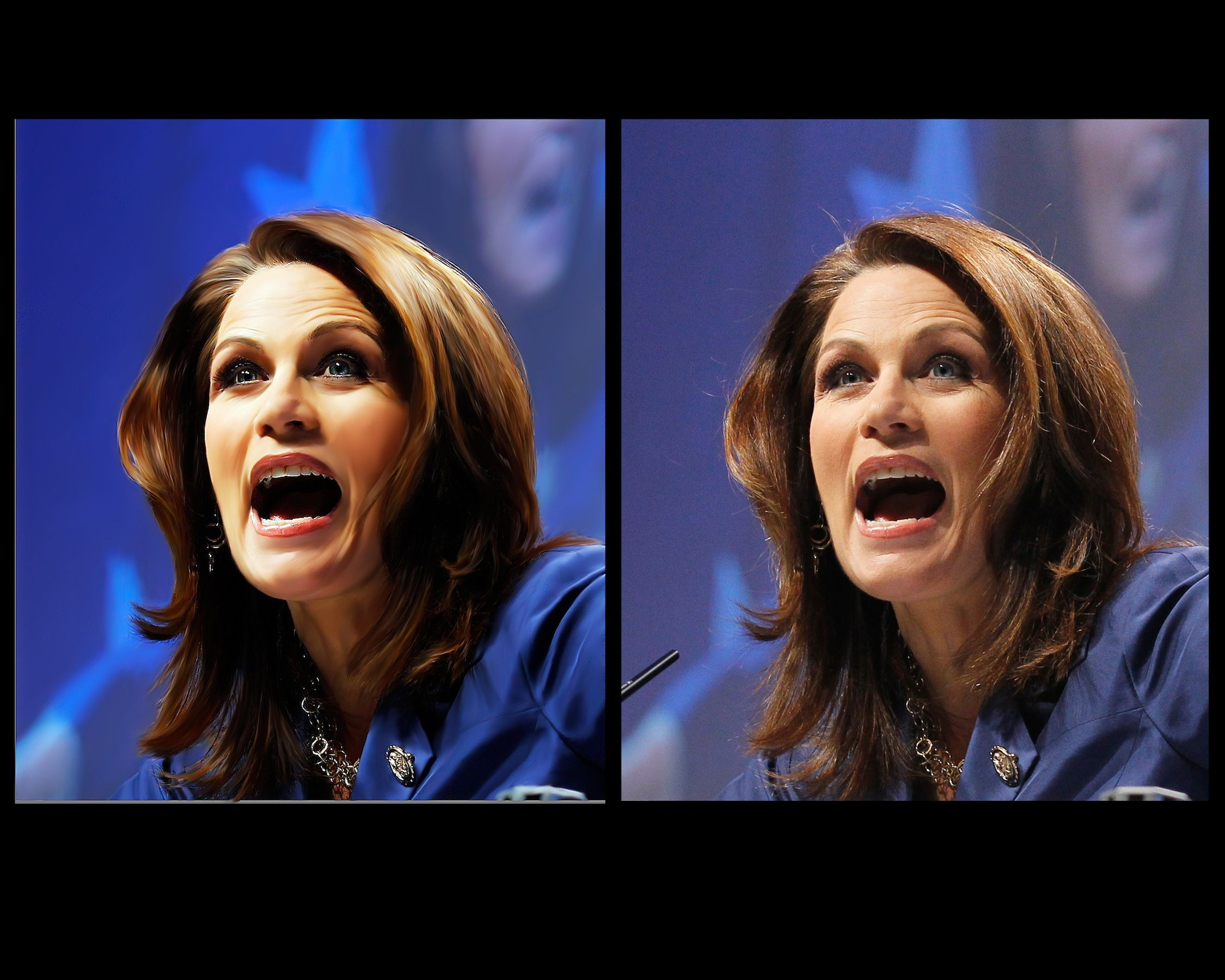 M.Bachmann before and after